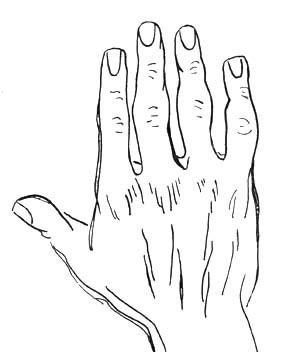 Боль в суставе указательного пальца правой руки