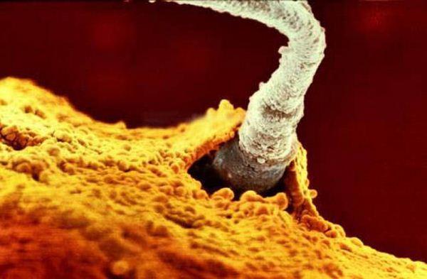 vizhivaet-li-spermatozoid-na-vozduhe