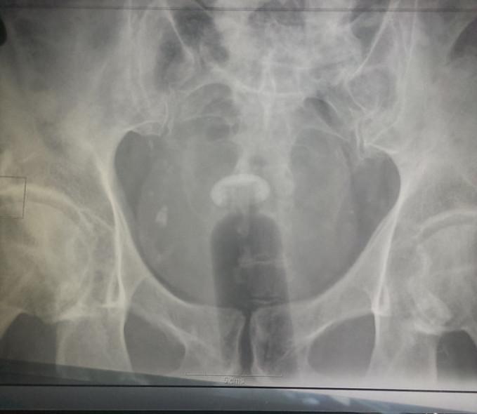 член в жопе рентген фото девушка